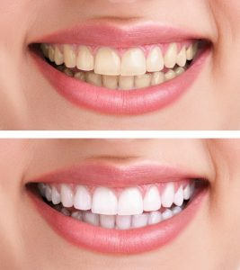 Teeth Whitening San Leandro, CA